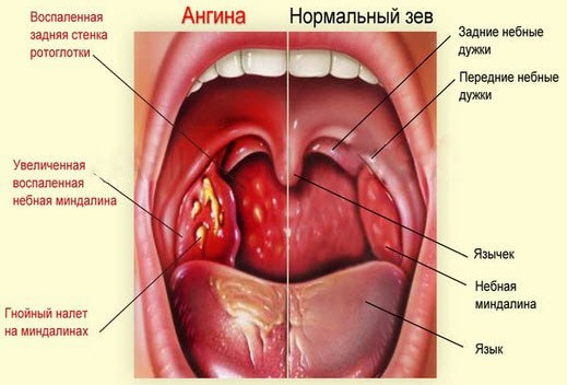 Как выглядят здоровые миндалины (гланды признаки фото) 24