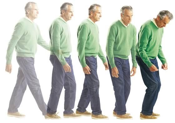 Болезнь Паркинсона. Симптомы болезни, лечение