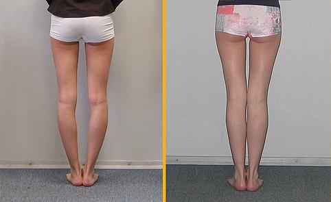 Как сделать пухлые ноги стройными