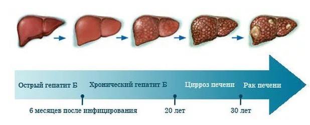 цирроз 2 стадия