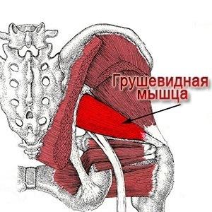 Как лечить синдром грушевидной мышцы и корешковый
