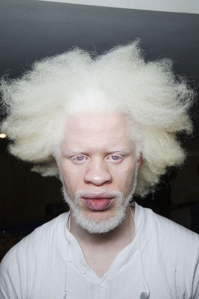 Белые негры альбиносы амулеты
