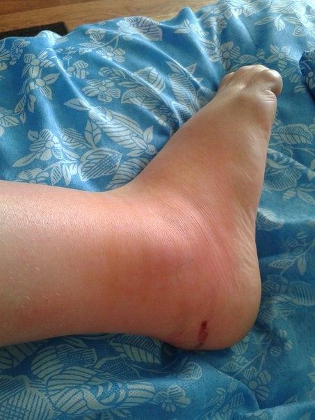 Почему опухает нога внизу возле косточки