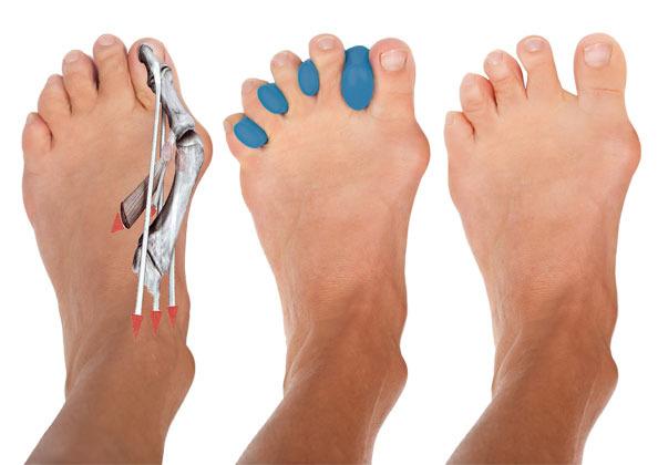 Эффективные упражнения от КОСТОЧКИ на ноге
