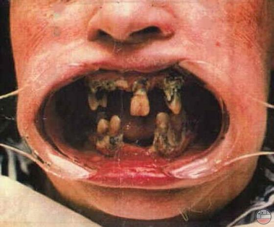 Инфекция от гнилого зуба