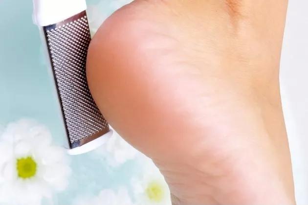 Как избавиться от трещин на пятке в домашних условиях