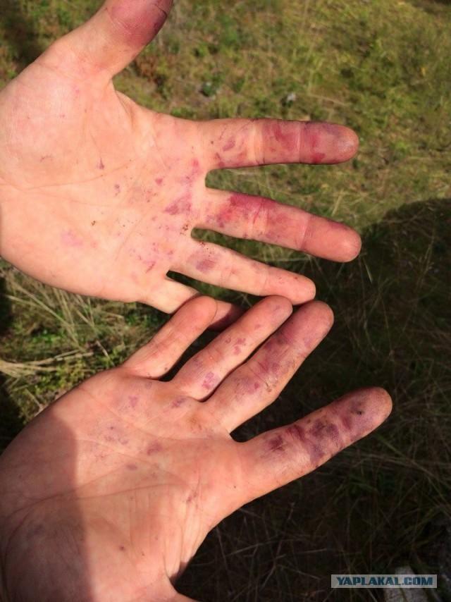 Чем отмыть ногти от черники