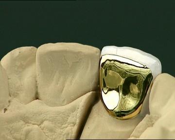 Наращивание зуба переднего от корня