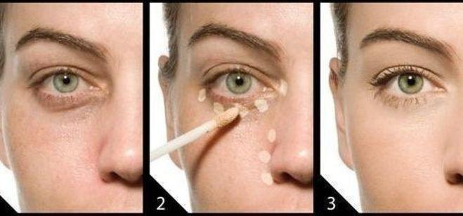 Как выбрать крем от синяков под глазами
