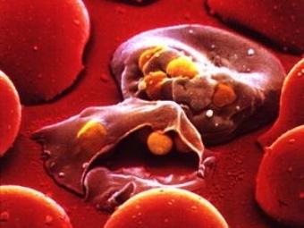 плазмодии в эритроцитах крови
