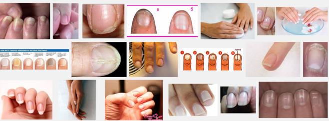 Витамины при слоящихся ногтях