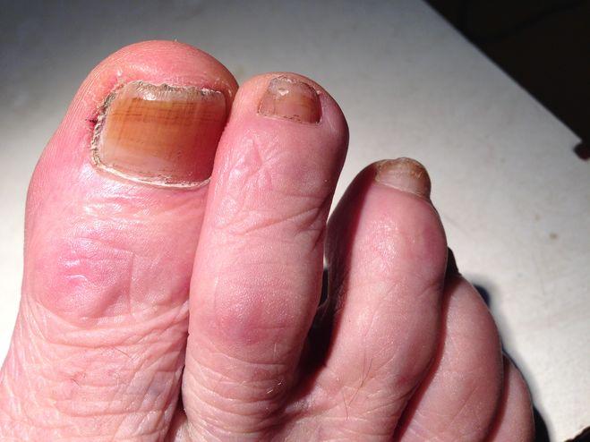 Эффективное лечение ногтевого грибка рук