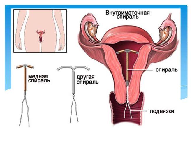 svechi-vaginalnie-posle-msg