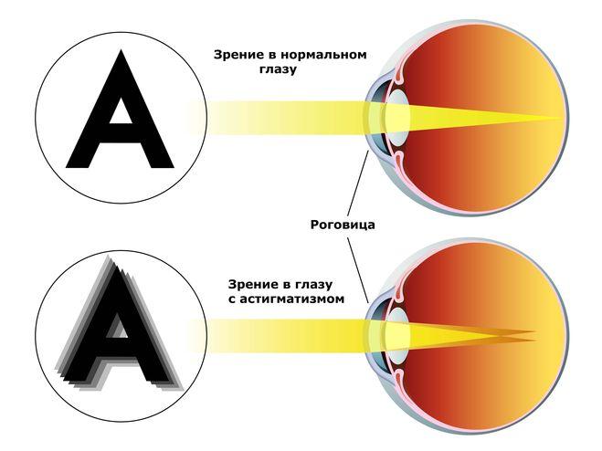 Макулодистрофия сетчатки глаза новое в лечении