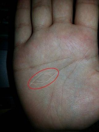 течение глаз ведьмы на левой руке волосы стоит тереть