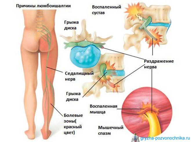 есть ли нервы в суставах
