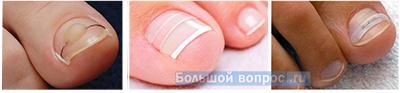 выравнивание вросшего ногтя при помощи пластин