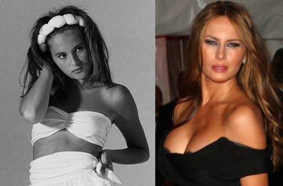 Мелания Трамп где смотреть фото до и после пластики?