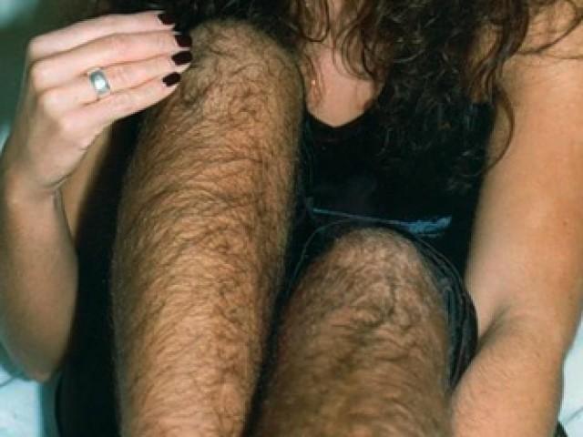 волосня на женских ногах