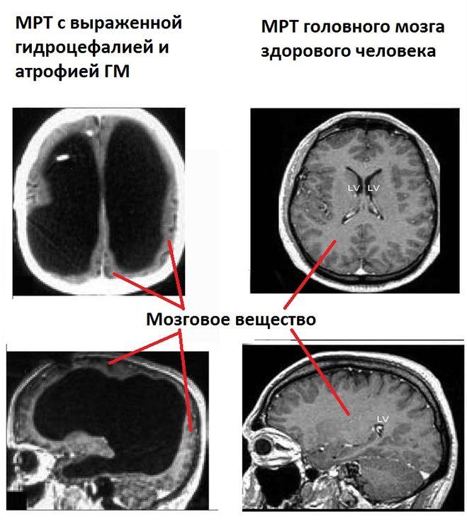 его атрофия головного мозга у детей белье термобелье должно