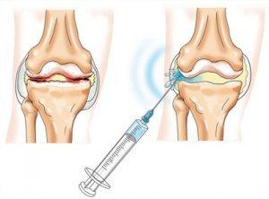 Какой препарат лучше вводить в суставы при остеоартрозе артроз плечевого сустава как лечить