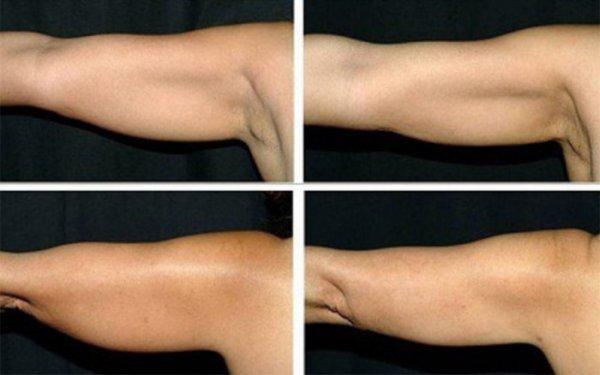 Как укрепить обвисшую кожу
