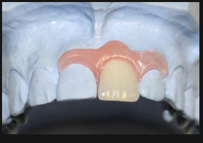 больно ли обтачивать зубы под виниры