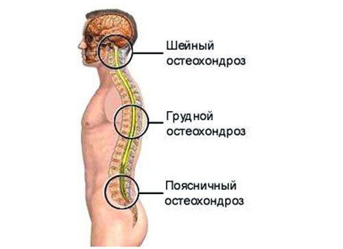 Лфк при остеохондрозе шейного грудного отдела в картинках