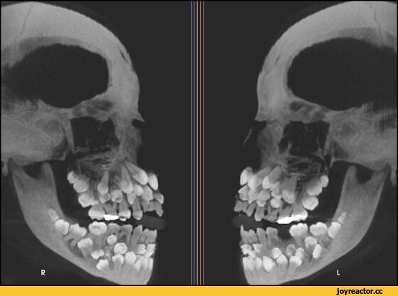 Почему у людей 200 зубов