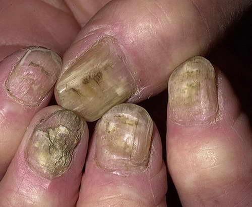 Фото что будет если грызть ногти