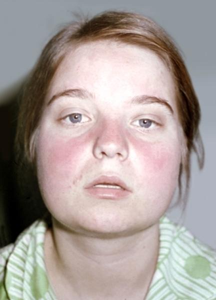 фотосенсибилизация фото симптомы и лечение