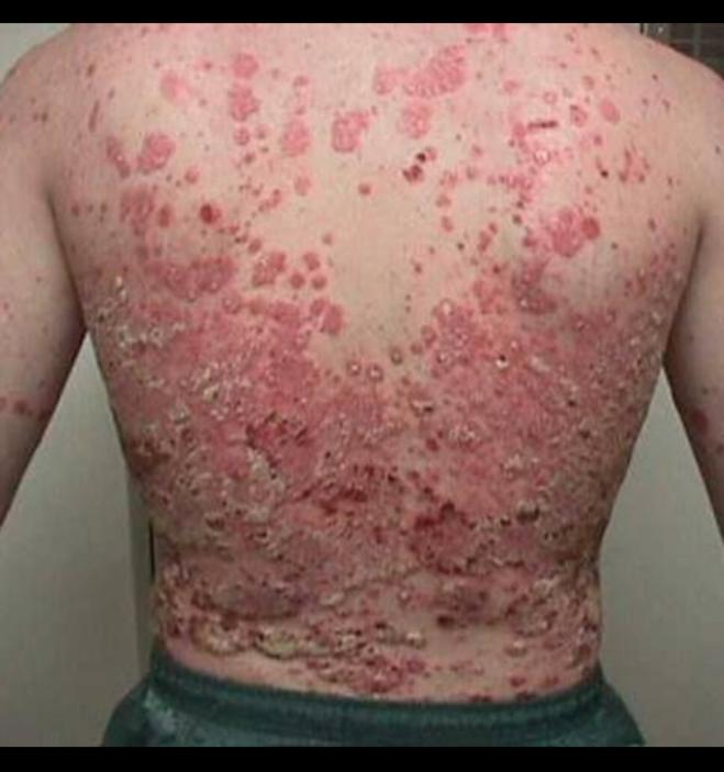 Желчекаменная болезнь стандарты лечения