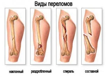 Сколько срастается перелом ноги? Сколько ходить с гипсом?