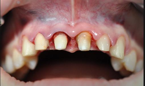 Как ставятся коронки на живые зубы