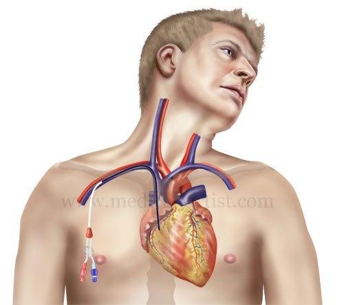 После укола в вену образовалась шишка и болит чем лечить