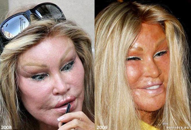Бейрнсе сделала операцию на нос фото