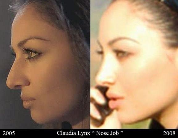 клаудия линкс до и после операции смотреть фотографии модель иранская актриса
