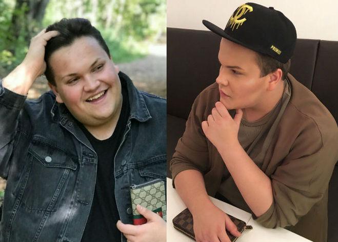 игорь синяк до и после похудения