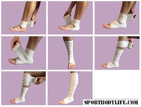 Операция по удалению вен на ногах реабилитация