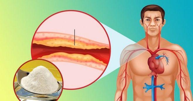 как победить холестерин в крови