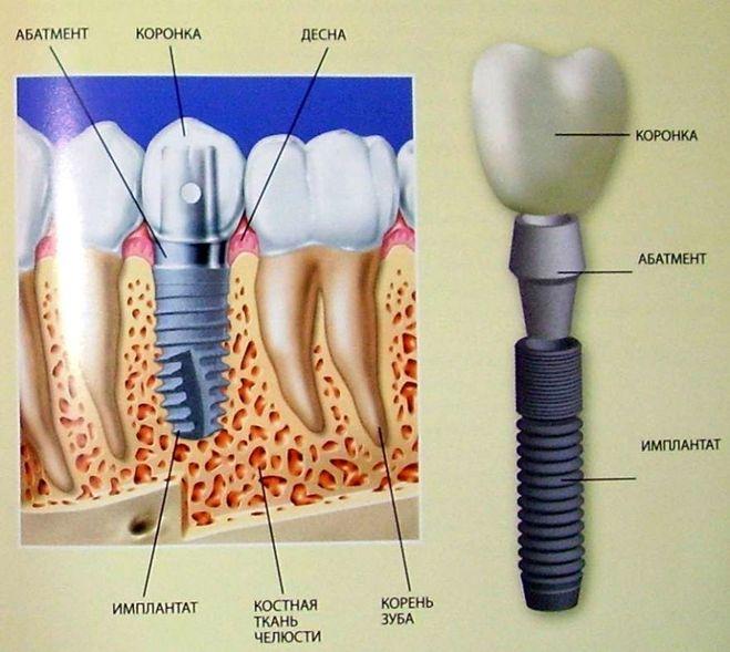 Операция по протезированию зубов