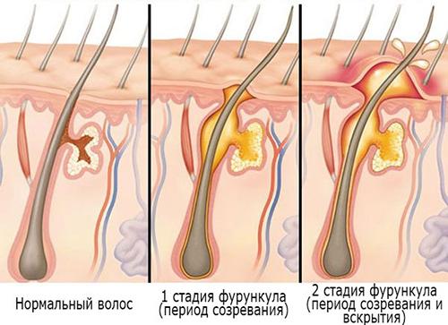 фурункул схема лечение