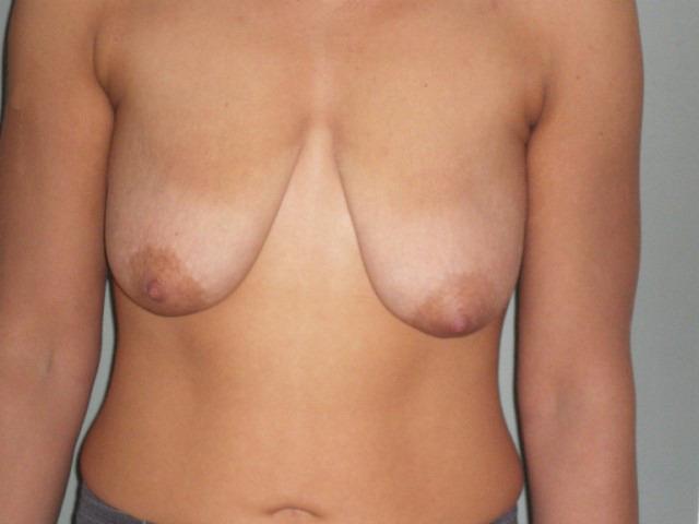 фото девушек с обвисшей грудью