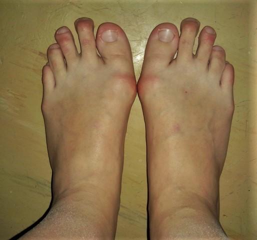 Девушки фото пальцы на ножках у девушки