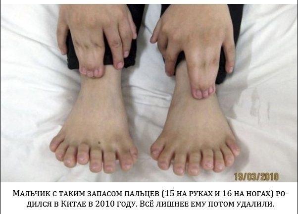 Как сделать чтобы пальцы на руках были худые 533