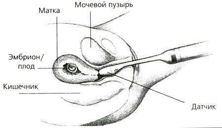 intimnaya-strizhka-analnaya