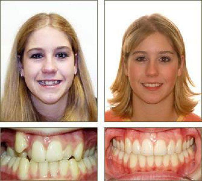 Что делать когда зубы не ровные