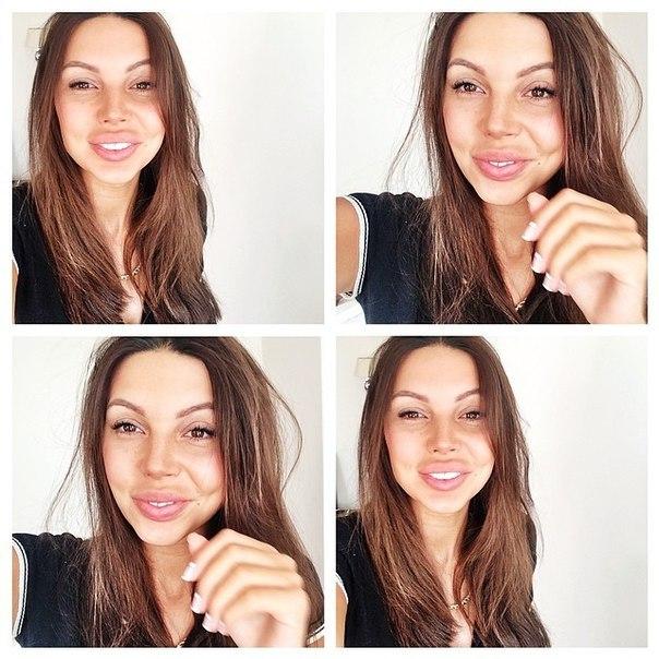 Оксана Самойлова до и после пластики. Где смотреть фото? Оксана Григорьева
