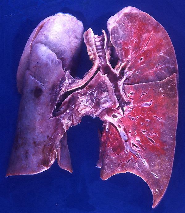 Что происходит с легкими если человек болен пневмонией?