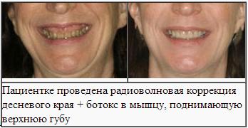 Коррекция десневой улыбки ботоксом схема